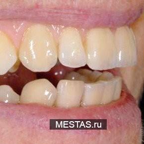 Стоматология Денталстом - фотография №3