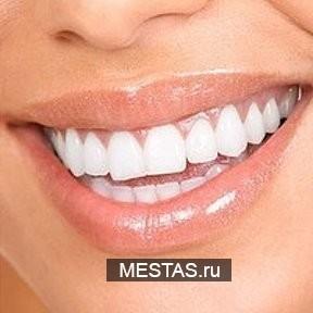 Салон косметического отбеливания зубов - основная фотография